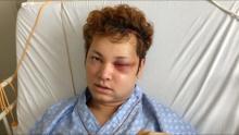 10万人に1人の難病で顔面崩壊の俳優、大手術から4ヶ月後の姿を公開