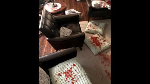 錦戸亮主演『トレース』。血しぶきや死体に見る、作り込みのリアルさ